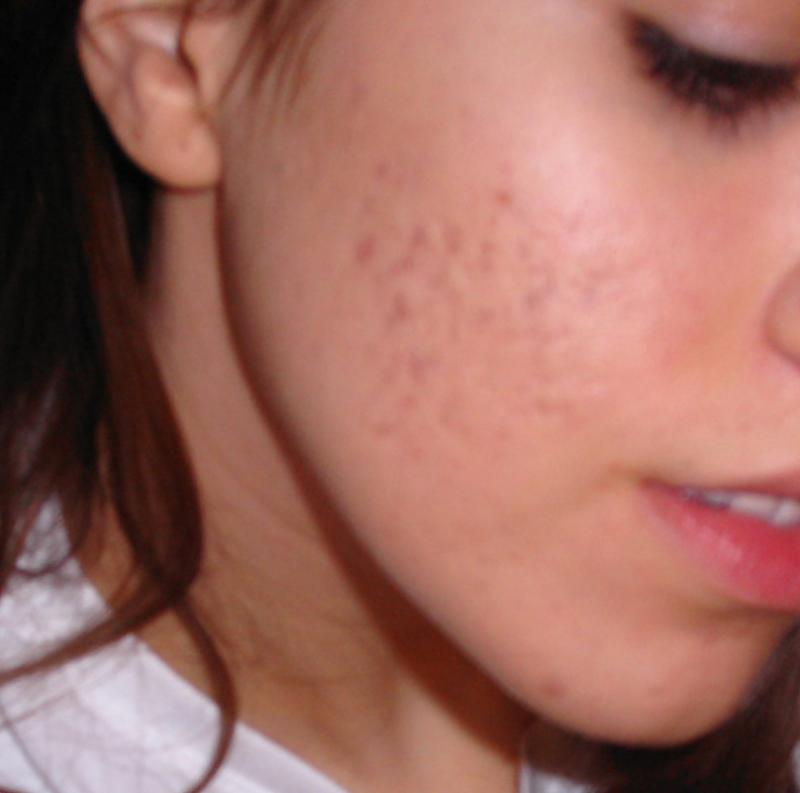 acne8.jpg