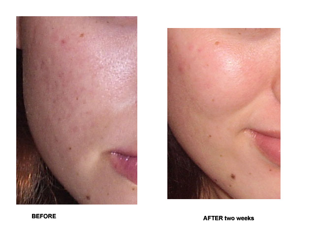 Started Microdermabrasion