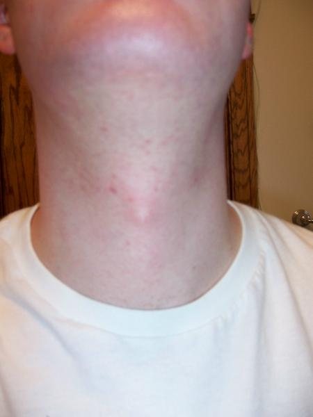 16 Weeks into Accutane