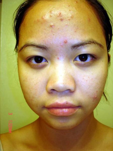 Clear Skin Regimen Log