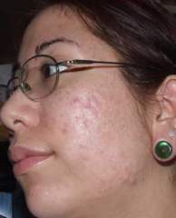 Scars... worst side of my face (week 11)