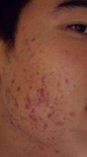 Acne on the side of my face