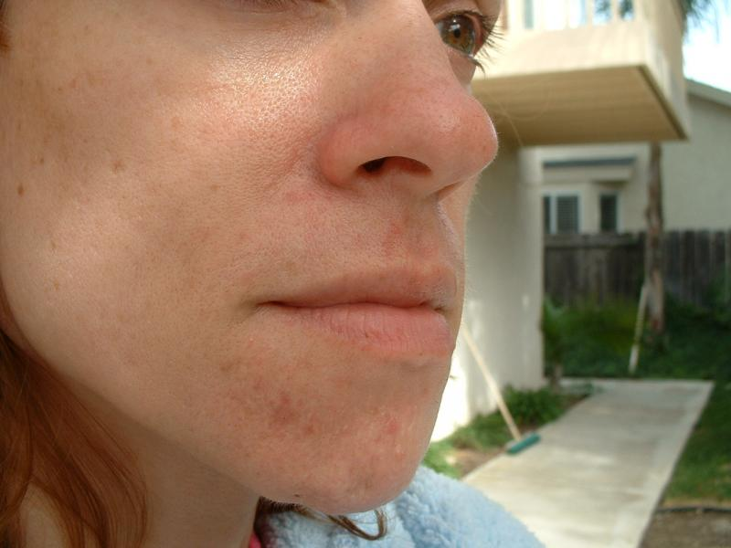 Another closeup of my bad skin