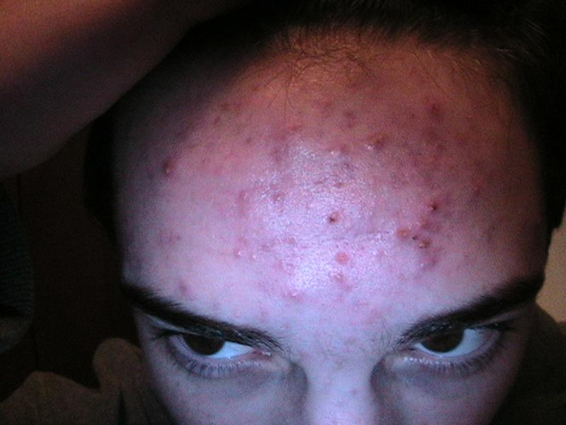 Before (Forehead)