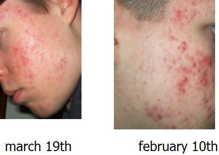 accutane journey starting 2.24.06