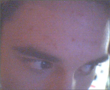 Forehead.