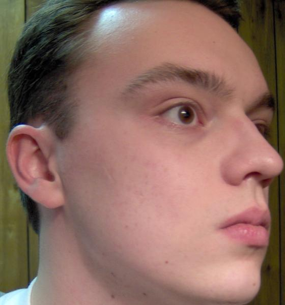 do i have acne dysmorphia or scars