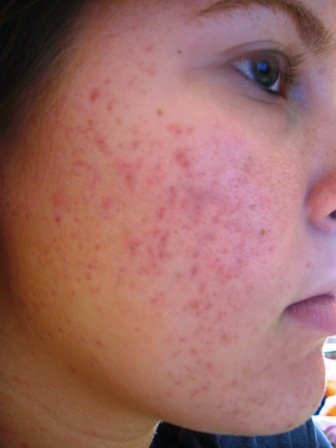 April 2nd, Day 4 on Proactiv