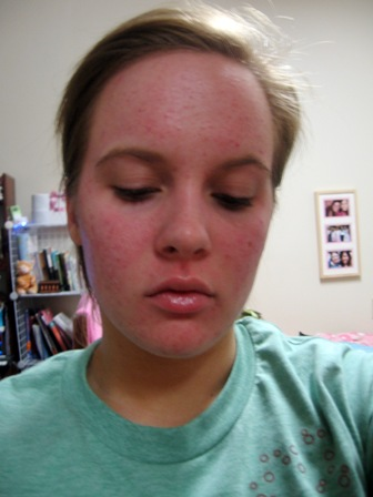 OH MY GOODNESS MY SKIN IS SO RED!
