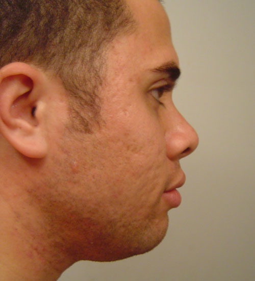 2006-04-08 Right Profile