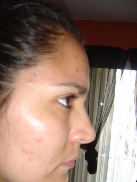 Skin Reaction