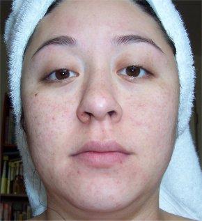 Starting Skin 4-08-2006