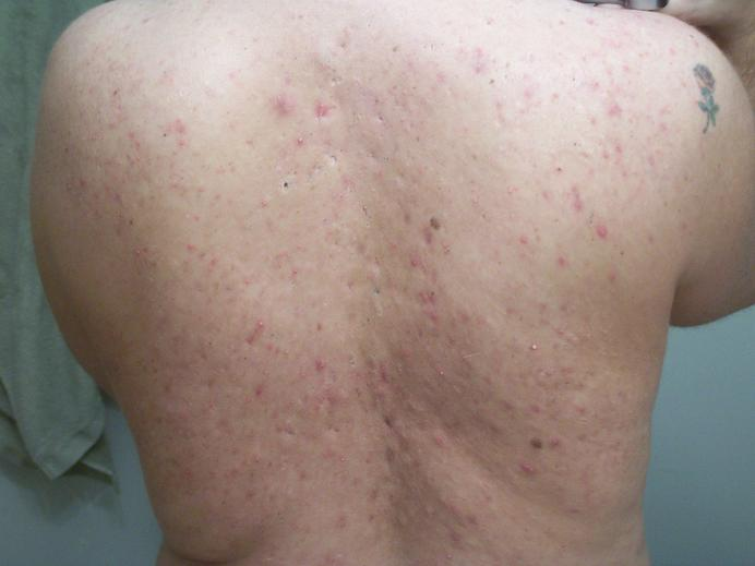 Day 3 of Accutane