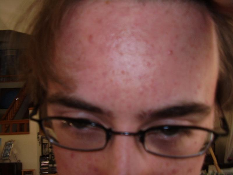 and the forehead