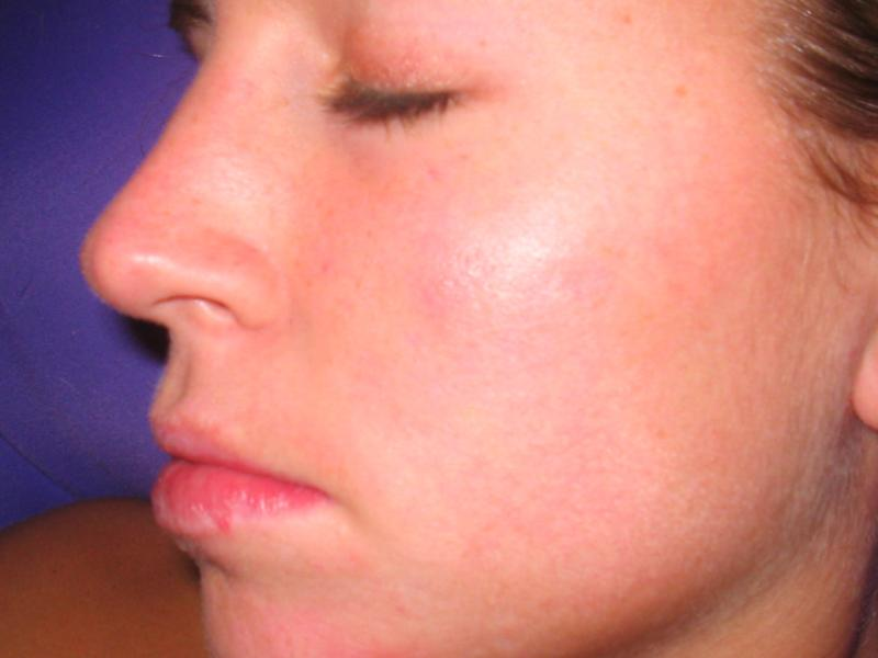 Day 117 of Accutane- 2 more months to go!