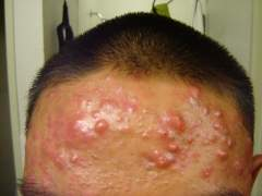 no results..just worst acne