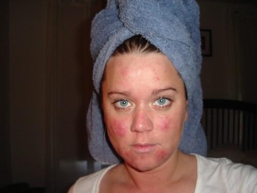 My acne's debut - June 2005