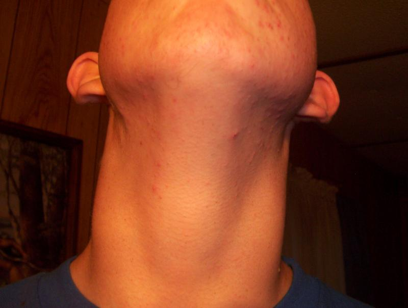 Day 3 Close up of neck