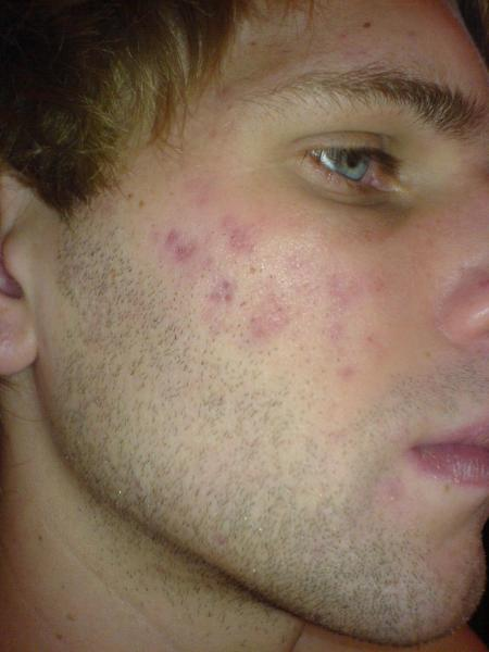 day 150 on accutane...