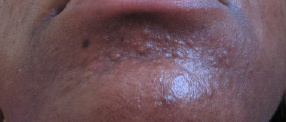 sebaceous hyperplasia/hypertrophic scarring on my chin