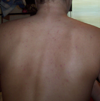 Day 2 / my back