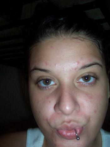 Day 3 / no makeup