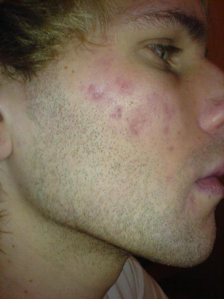 Day 165 on accutane right side