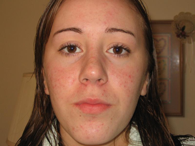 The seemingly ever process of accutane
