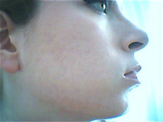 LAST DAY OF ACCUTANE :) 27/07/06