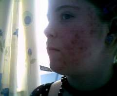before and after accutane