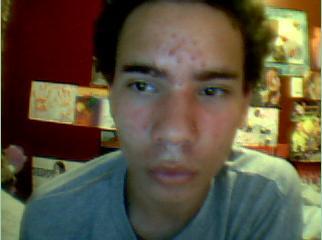 Forehead,chin,cheecks (day 3)
