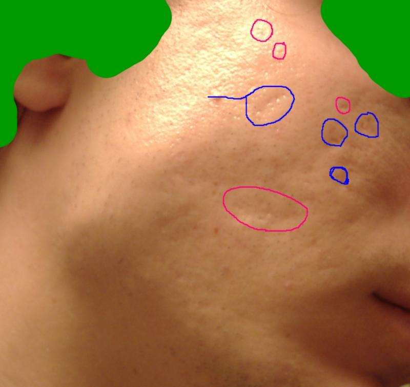 My scars :(