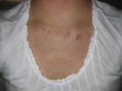 chest before accutane