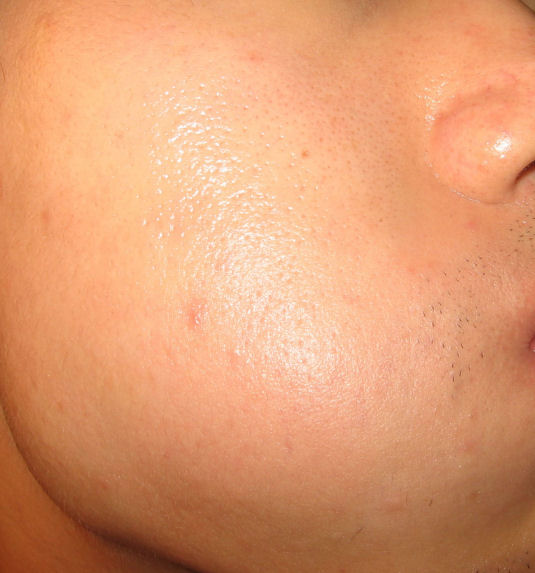 Are these scarred pores or just big pores? Or scars?