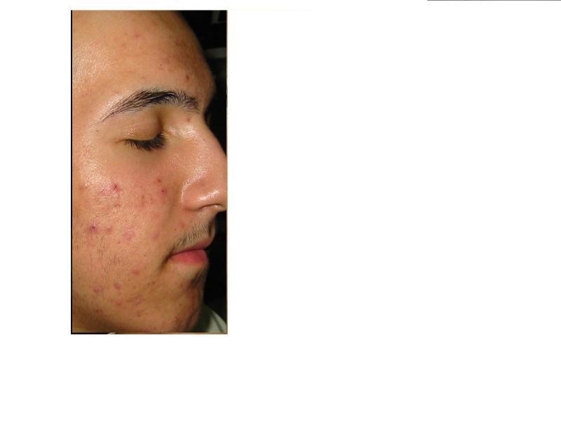 Before using the clear skin regimen.