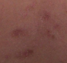 scar close up