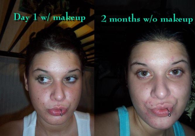 Day 1 compared to 2 months