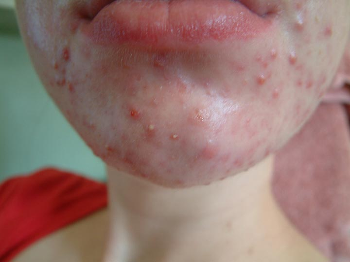 still on accutane