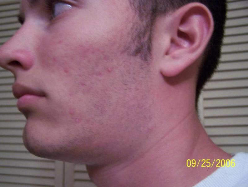 Sept 25 2006 Left