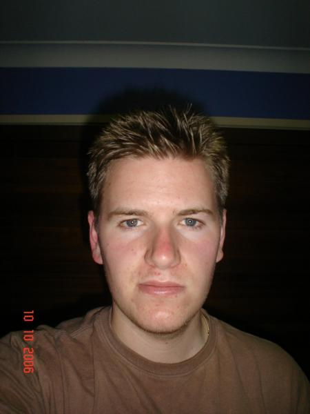 My mild acne.