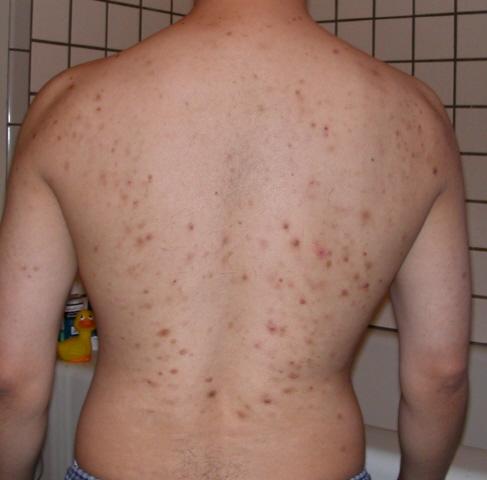 can hydrochlorothiazide cause skin cancer