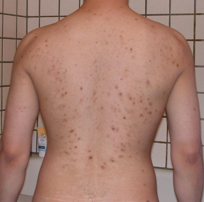 acne week1 oct/17/06