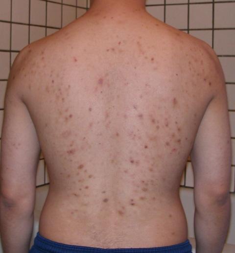 acne week2 oct/24/06