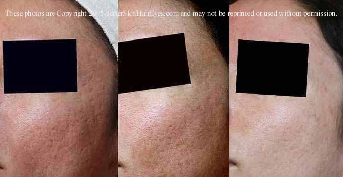 Scar Pics - before and after
