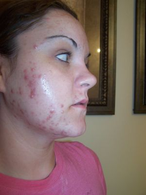 Oh No! Acne.....