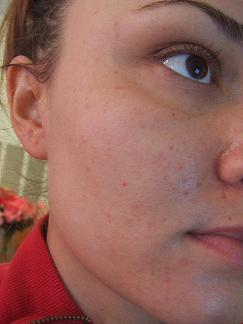Acne back nov6 023.jpg