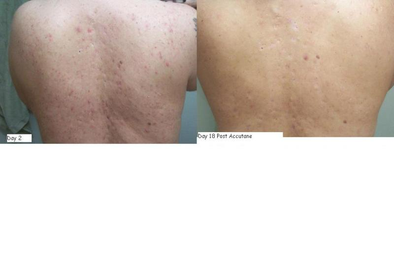 Day 2 vs Day 18 Post Accutane