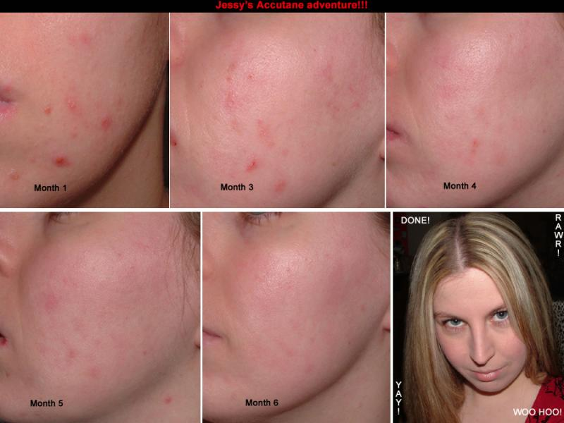 accutane collage