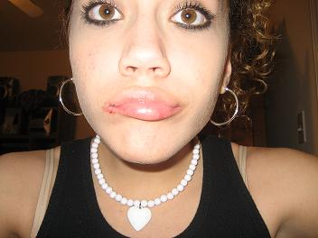 my lips from accutane...