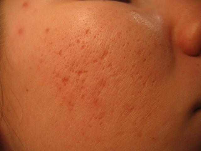 Bettina's Scars